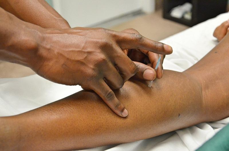 Medicina Cinese e agopuntura, ecco quali malattie possono trattare