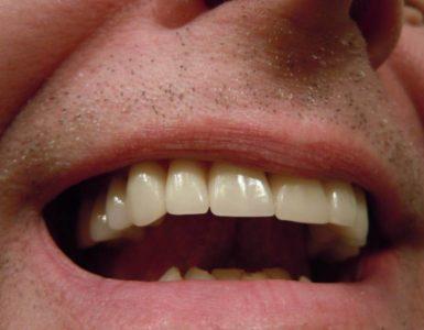 disturbi della bocca
