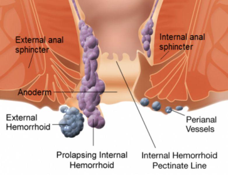 Rimozione chirurgica delle emorroidi, quando è necessaria?