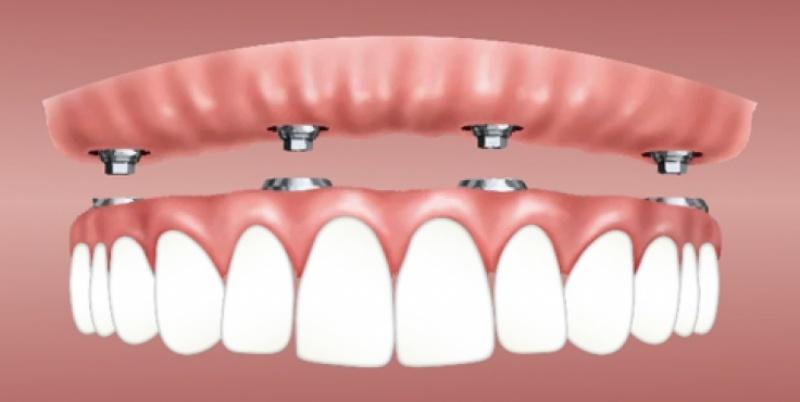 Le nuove frontiere dell'implantologia