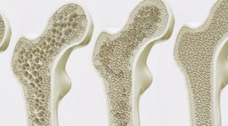 Quello che non sai sull'osteoporosi