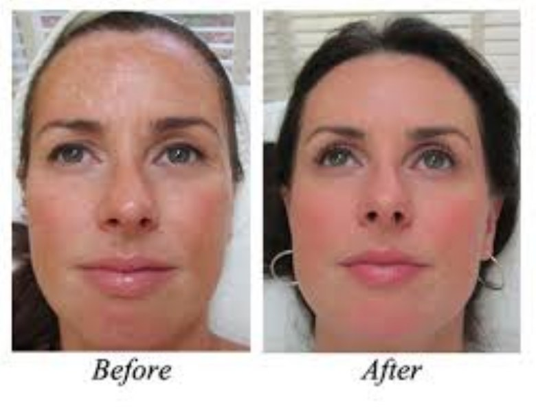 Acido Glicolico per il viso; cosa è e le sue proprietà