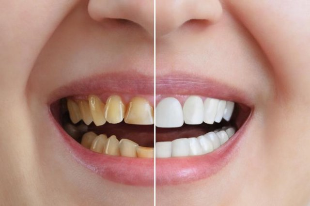 Lo sbiancamento dei denti: tutto quello che dovete sapere